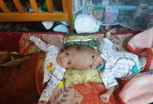 Photo of أسرة السيامي اليمني بحضرموت تناشد تبنّي عملية فصل توأمها بالخارج